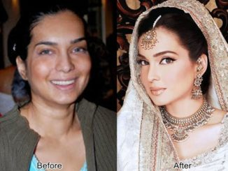 amna haq failed plastic surgery