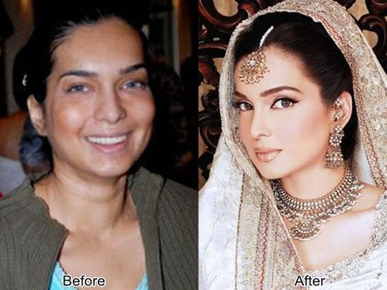amna haq failed plastic surgery